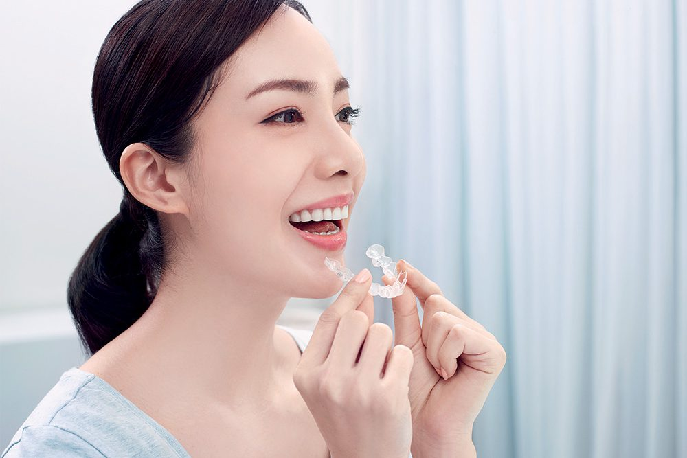 Invisalign Treament in Osaka for Adults