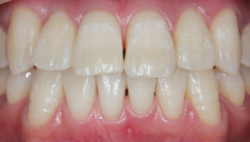 Osaka Teeth Whitening After Photo 1