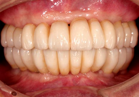 Dental Implants full mouth replacement