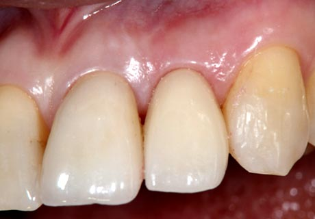 Dental implant front tooth after