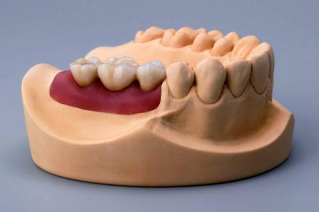 Dental implant model gum and bone