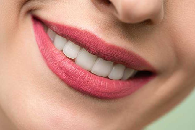 Dental implants for perfect teeth