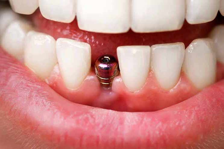 Dental implant post without crown