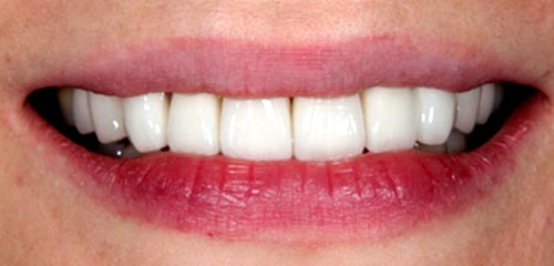 Esthetics and Orthodontics Example 1 After