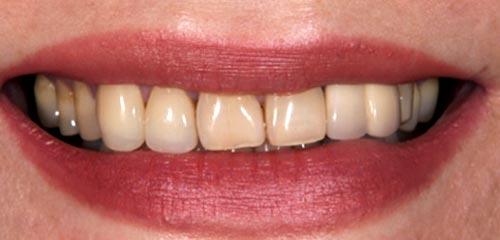 Esthetics and Orthodontics Example 1 Before