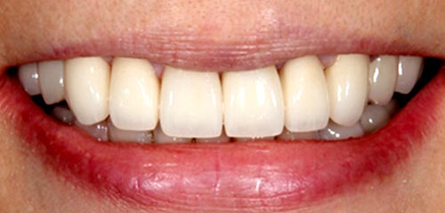 Esthetics and Orthodontics Example 2 After