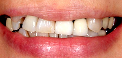 Esthetics and Orthodontics Example 2 Before