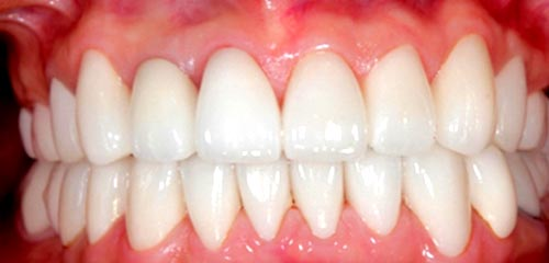Esthetics and Orthodontics Example 3 After