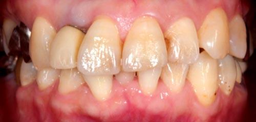 Esthetics and Orthodontics Example 3 Before